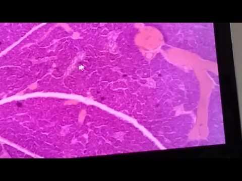 Методы лечения вирусных гепатитов