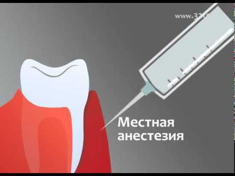Лечение десен аппаратом Вектор (Vector)