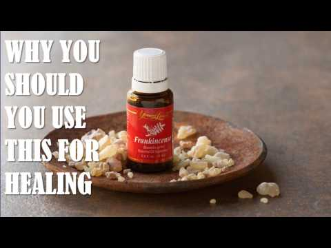 Video Top 10 Amazing Benefits of Frankincense Oil for Health