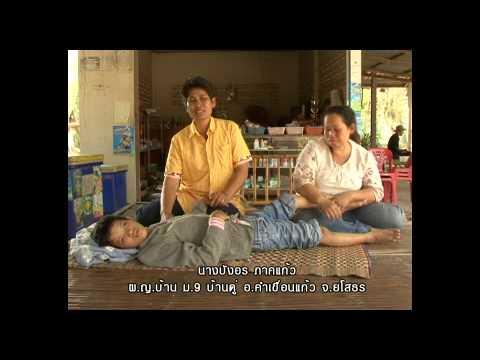 การรักษาด้วยคลื่นช็อกเส้นเลือดขอด