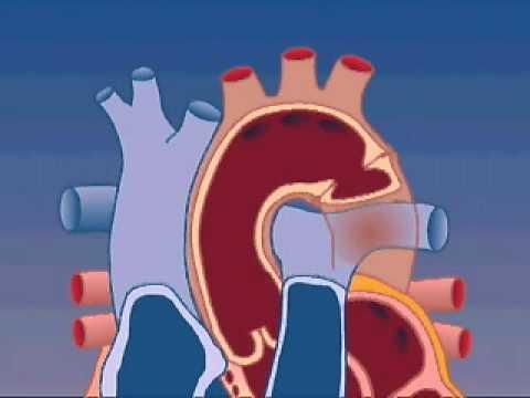Tratamentul ineficient al hipertensiunii arteriale