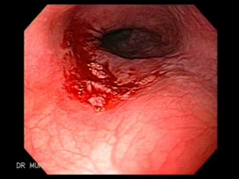 Hpv bladder cancer