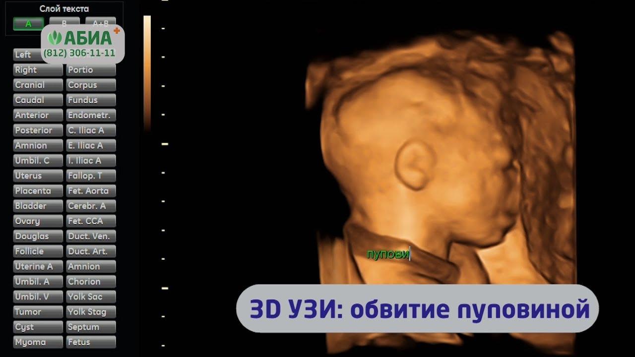 3D УЗИ: обвитие пуповиной