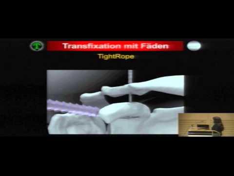 Video Arthroskopie des Handgelenks