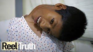 Mahendra Ahirwar: The Boy Who Sees The World Upside Down | Medical Documentary | Reel Truth
