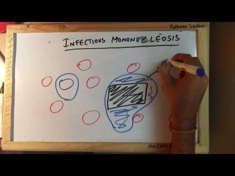 Térdízület keresztező ligamentum-szakadása hogyan kezelhető