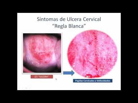 Sarcoma cancer lms