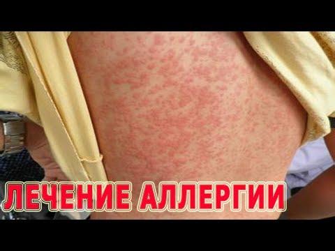 ★Лечение АЛЛЕРГИИ. Первая помощь. Причины возникновения. Питание при аллергии.