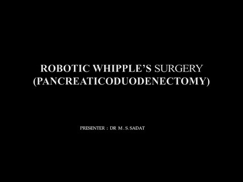 Robotic Whipple's Surgery- Pancreaticoduodenectomy