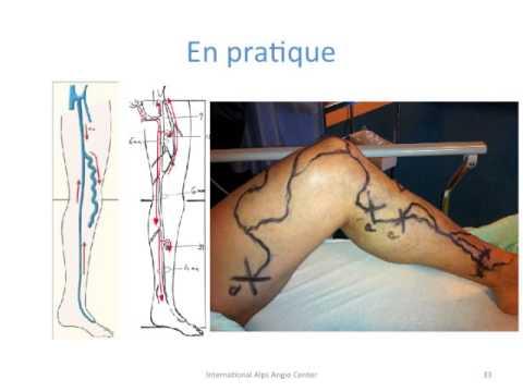 La phlébite des veines profondes et sa complication