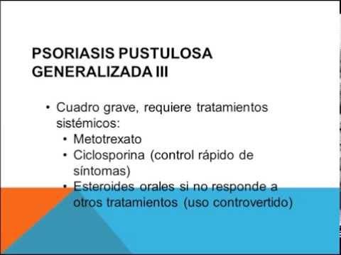 El tratamiento de la psoriasis rostov en donu