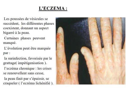 Atopitchesky la dermatite chez les enfants de 2-3 années