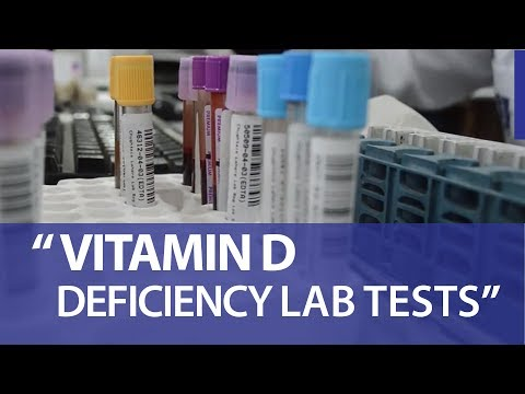 Tests for Vitamin D deficiency