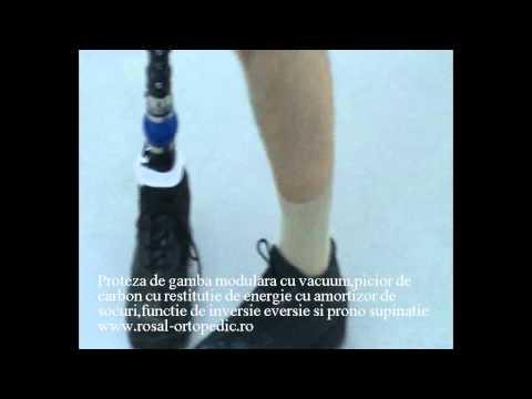 Primirea de invaliditate în diabetul zaharat de tip 2