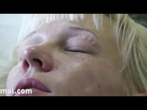 Hypostases dopo un blefaroplastika di occhi asiatici