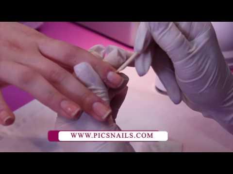 Kreolin da un fungo di unghie