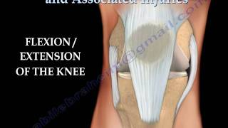 Knee  injury ,Injuries - Everything You Need To Know - Dr. Nabil Ebraheim