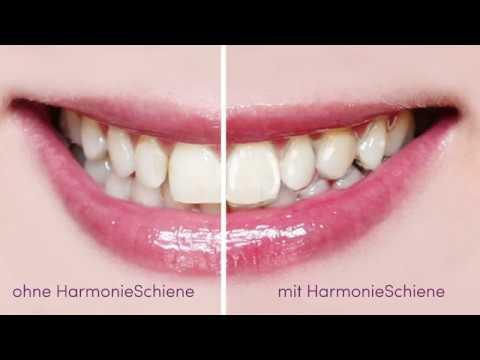 Hier wird Lächeln gemacht - HarmonieSchiene vom deutschen Fachlabor Orthos