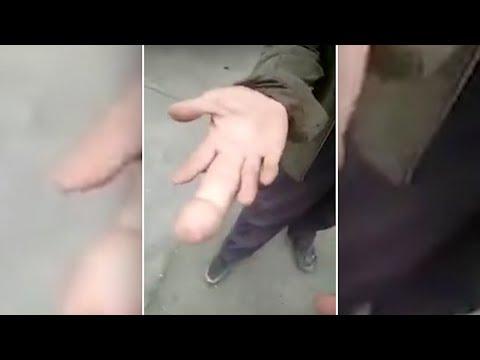 Die Valgusdeformation der Füsse die Operation