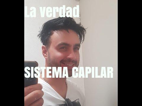 La verdad sobre mi SISTEMA CAPILAR(2019)! MEXICO
