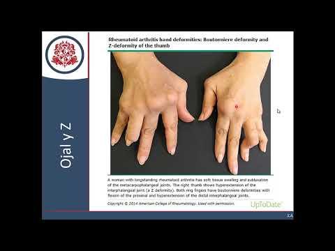 Mana pentru poliartrita reumatoida