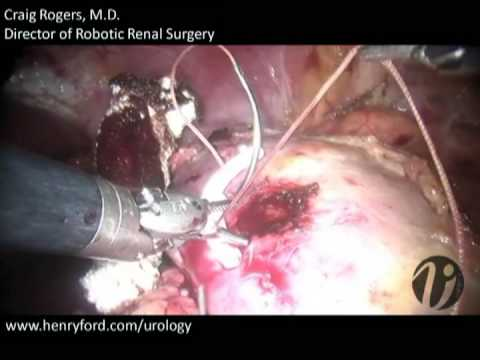 Robotic Partial Nephrectomy - Step 9: Capsular Closure and Specimen Removal