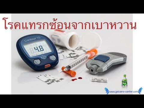 น้ำตาลและเส้นเลือดขอด