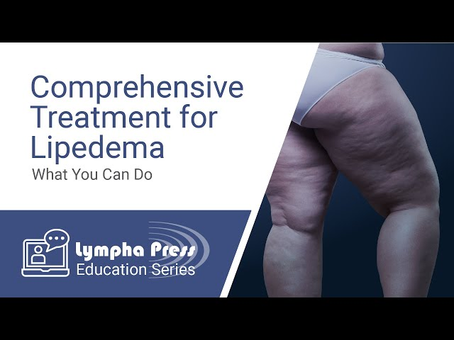 Comprehensive Treatment for Lipedema: What You Can Do