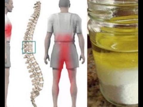 Cisti sulle articolazioni del ginocchio