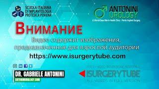 Эксплантация и реимплантация гидравлического фаллопротеза спеноскротальным доступом