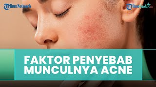 Penyebab Munculnya Acne Vulgaris Menurut Dokter Ammarilis Murastami, Sp.KK