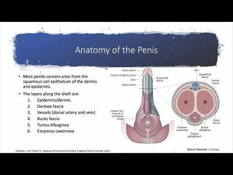 Papilloma intraduttale b3