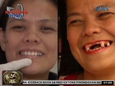 Bras para sa mga maliliit suso upang gawin itong tila mas malaki