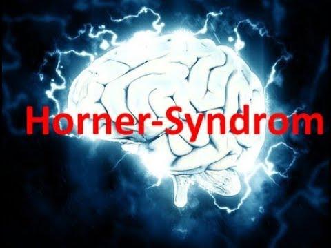 Horner Syndrom / #Neurologie 3
