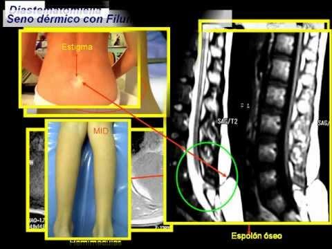 Vídeo masaje después de hombro fractura conjunta