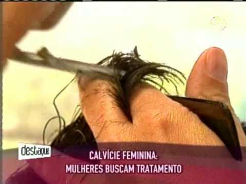 Entrevista sobre calvície com Dra. Christine - Vídeos | Clínica GrafGuimarães