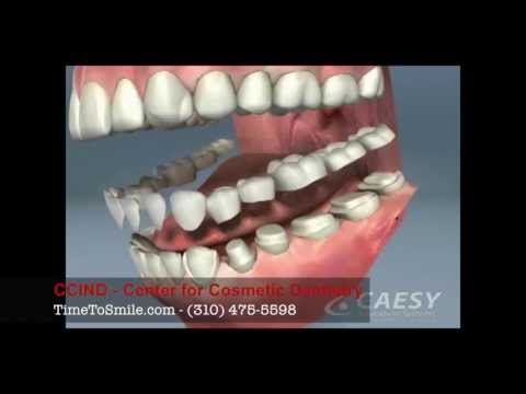 TMJ Neuromuscular Dentist