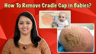 How To Get Rid Of Cradle Cap On A Baby