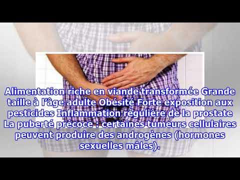 Supporter la bile dans ladénome de la prostate