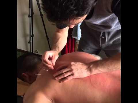 китайский массаж при простатите
