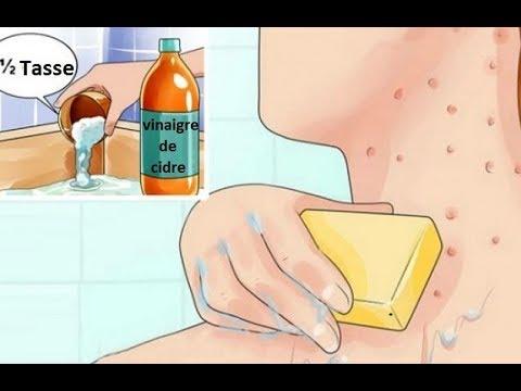 Lokoid krelo les rappels du psoriasis