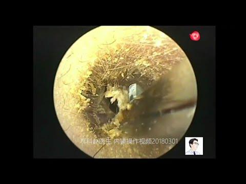 Laser itinuturing ng kuko halamang-singaw sa aking mga paa
