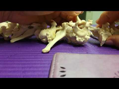 Wiederherstellung des Kniegelenks nach Meniskusschäden