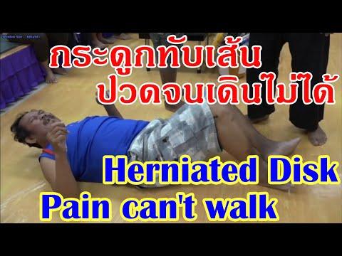 สิ่งที่สามารถทำได้จากเส้นเลือดขอดที่ขา