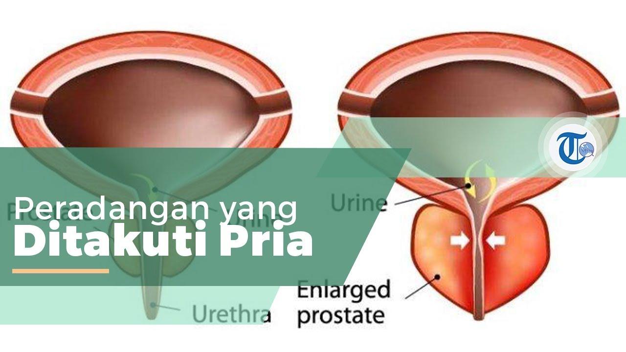 prosztatitis kezelése a közegben