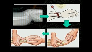 Treatment of Common Geriatric Fractures: Wrist, Elbow and Shoulder