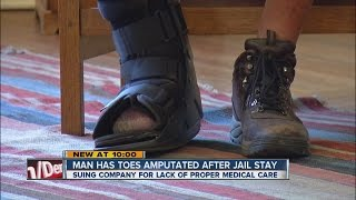 Man has toes amputated after jail stay