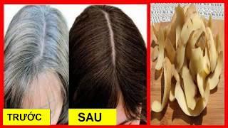 Cách trị tóc bạc sớm tận gốc chỉ sau 2 tuần (How to treat silver hair early)