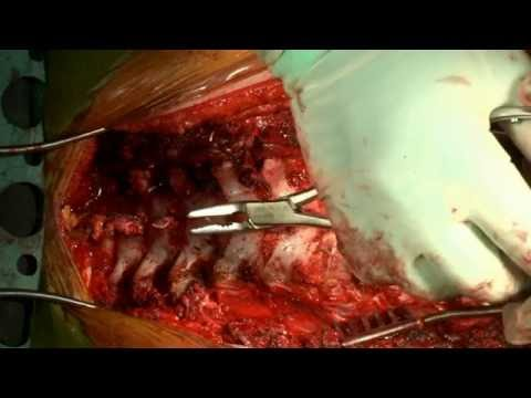 Posterior Spinal Fusion and Correction of Scheuermann Kyphosis