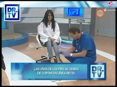 Las consultas médicas por el tratamiento del hongo de las uñas